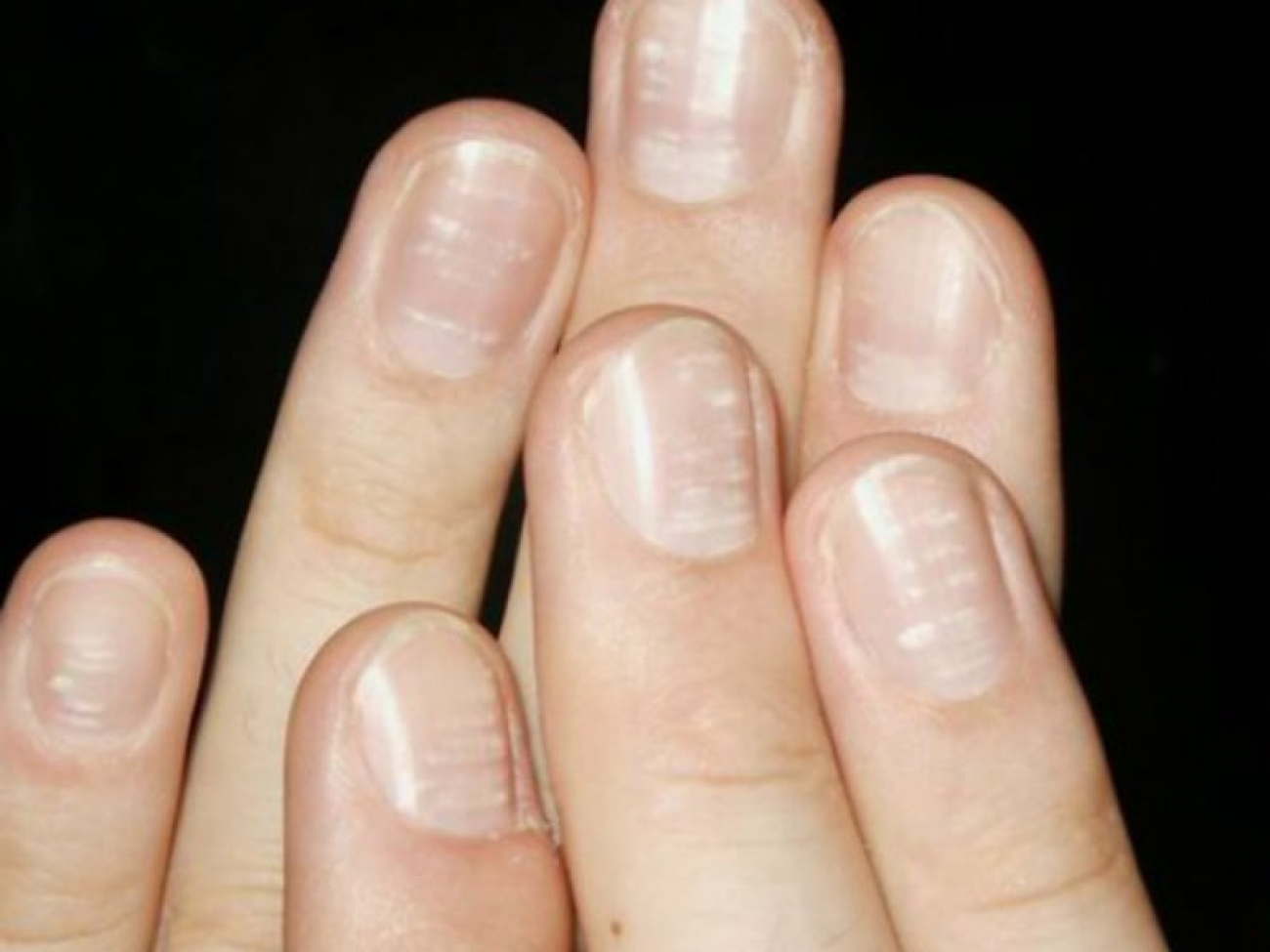 white-spots-on-nails